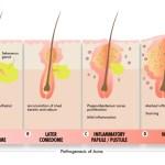 ¿Qué es el acné? Formas clínicas del acné