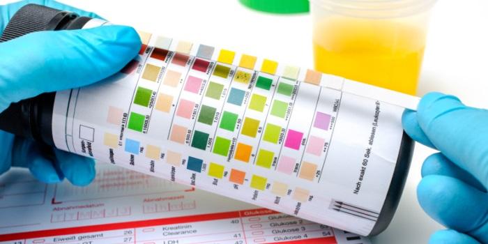Alcalinidad, el pH la llave de la salud