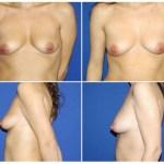 Macrolane aumento de pecho sin cirugía