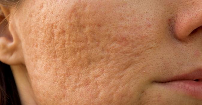 Tratamientos para eliminar cicatrices y marcas ocasionadas por el acne