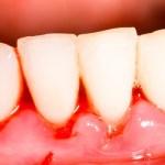 Gingivitis inflamación, hinchazón y sangrado de las encías