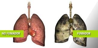 Enfermedad Pulmonar Obstructiva Crónica o enfisema pulmonar