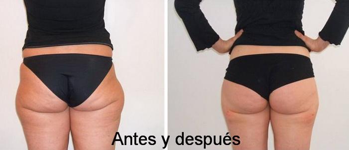 Obesidad androide como adelgazar los muslos