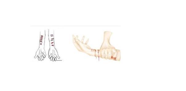 Un dibujo que muestra a una persona con cortes en los antebrazos