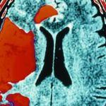 """عقاقير الجلطات الدماغية توقف أعراض مرض الزهايمر"""""""