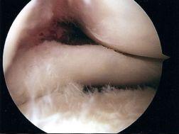 Rob's surgery pics04