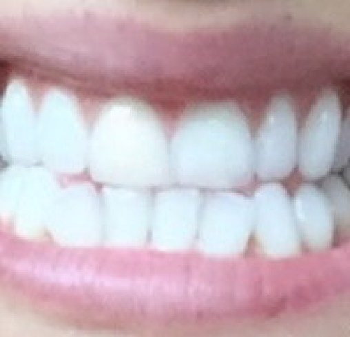 before and after Iwhite 2