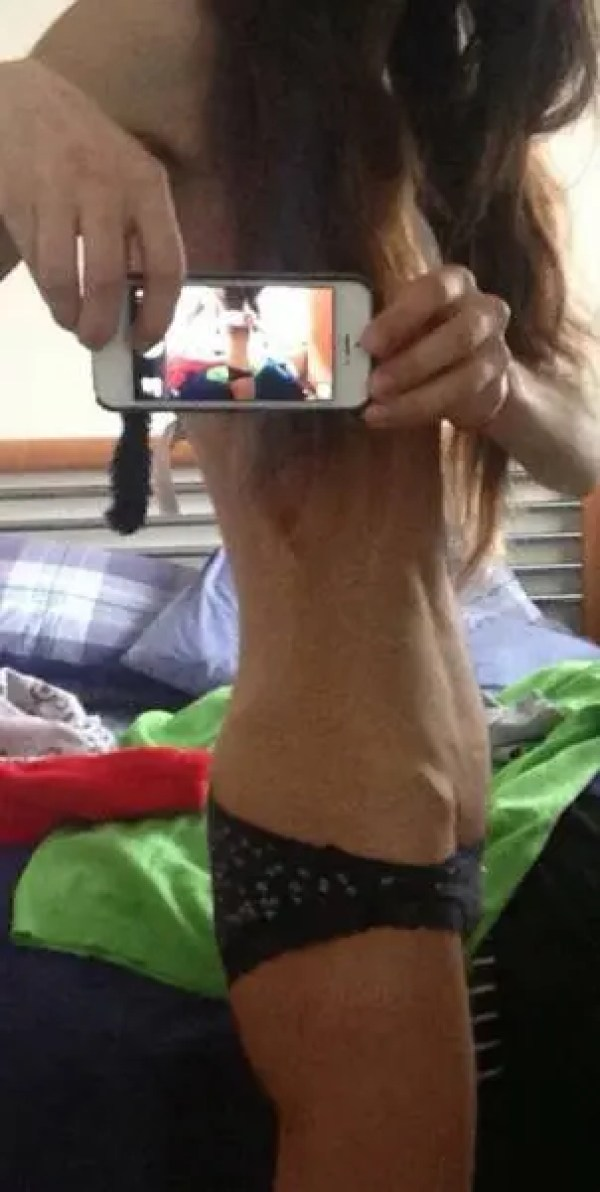 Anorexia (5)