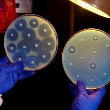 ¿Qué hay después de los antibióticos?