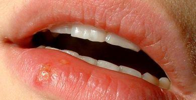 herpes labial cura definitiva