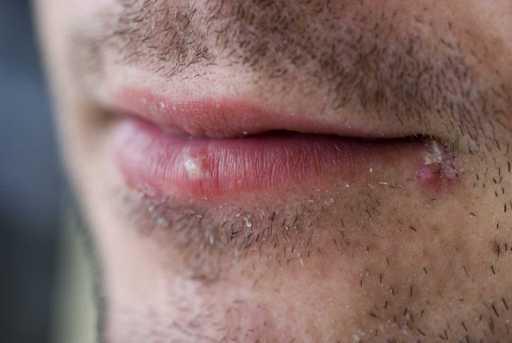 herpes simple con barba puede infactarse mucho más