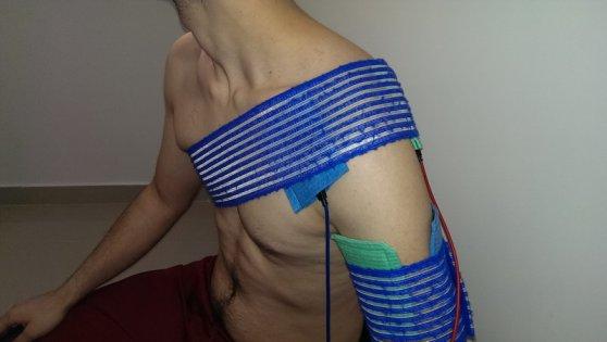 fizioterapie umar