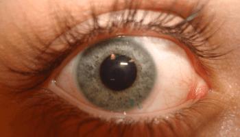Contacteye