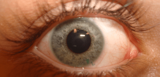 How To Care For Your Eyes While Travelling