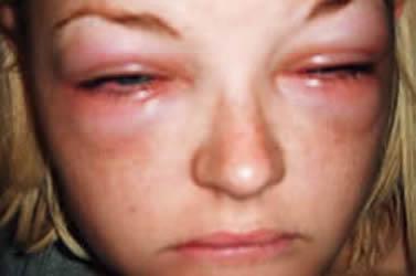 Elite Urgent Care Centers - Allergic Reaction Rash Urticaria Hives