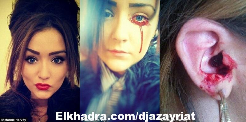 بكاء الدم.. حالة غريبة تصيب فتاة في ال 17 من عمرها