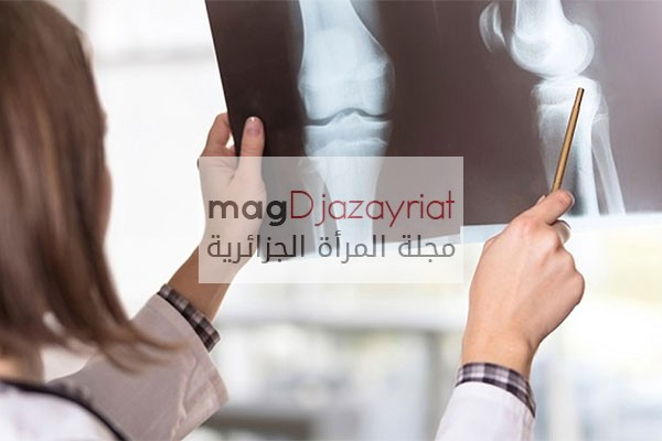 هشاشة العظام تنخر 40 من المائة من الجزائريات