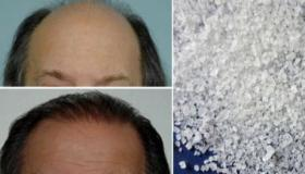 أفضل وصفات لإعادة نمو الشعر يوصي بها الأطباء