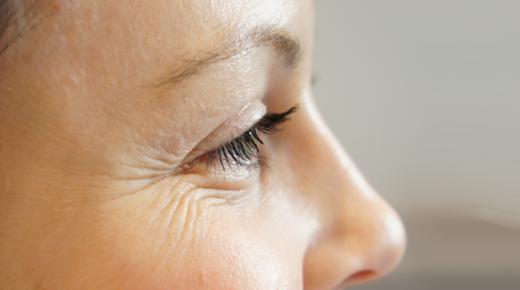طرق التخلص من التجاعيد حول العينين بوصفات طبيعية