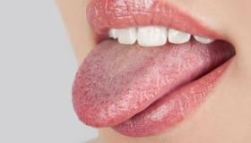 علاج فطريات اللسان بالطب البديل