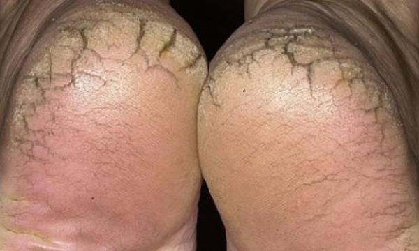 التخلص من تشقق القدمين
