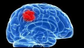 ما هي أعراض ورم الدماغ ؟