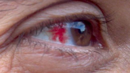 ما هي أعراض ضغط العين ؟