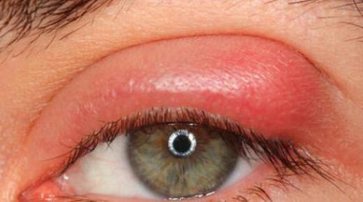 ما هي أسباب تورم جفن العين ؟
