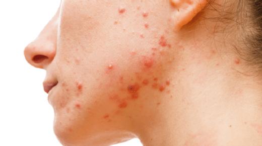 التخلص من حساسية الوجه