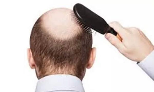 تساقط الشعر عند الرجال .. الأسباب والعلاج