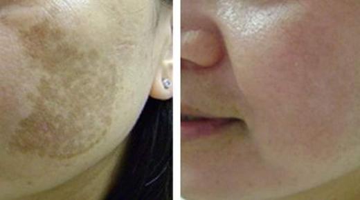 علاج الكلف وبقع الجلد بوصفات طبيعية