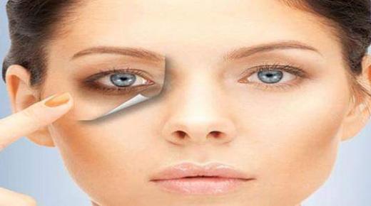 وصفات منزلية لعلاج الهالات السوداء تحت العينين