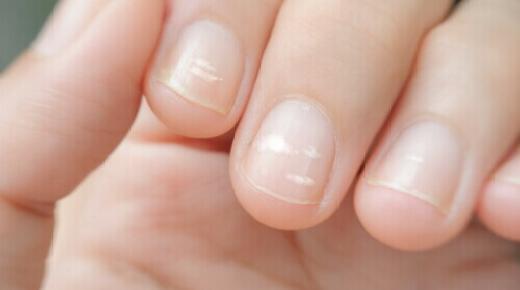 كيفية إزالة الخطوط على أظافر اليدين؟