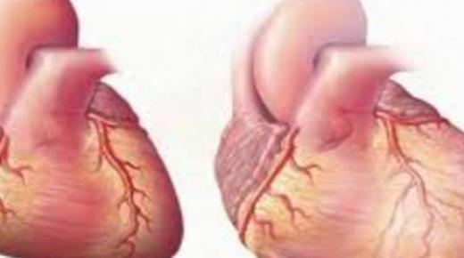 ما هي أسباب تضخم القلب ؟