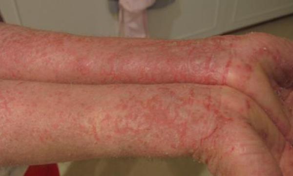 ما هي الإكزيما الجلدية ؟