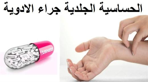 الحساسية من الأدوية