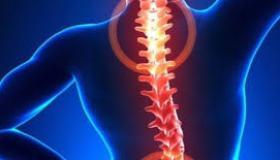 أعراض هشاشة العظام