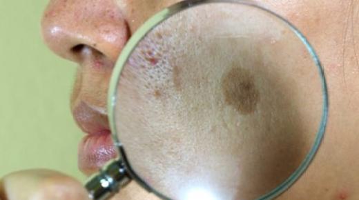 ما هي العلاجات الطبيعية لتصبغ الوجه؟