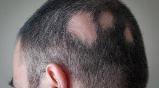 كيفية علاج ثعلبة الشعر بشكل طبيعي ؟