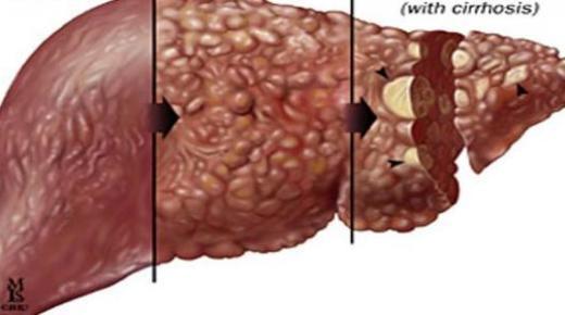 مرض الكبد الوبائي