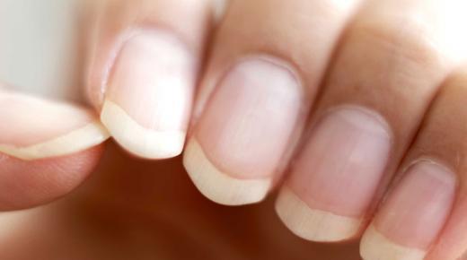 علاج فطريات الأظافر
