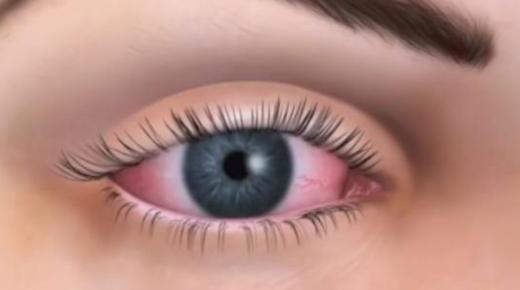 ما هي أعراض جفاف العين ؟