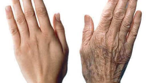 كيفية علاج بقع العمر على يديك بشكل طبيعي