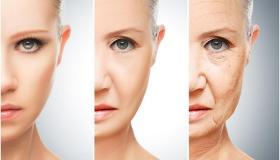 ما نحتاج إلى معرفته عن إزالة التجاعيد وخطوط العمر
