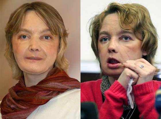 Isabel Dinoire, en su primera aparición en público, el pasado febrero (dcha). A la izquierda, la semana pasada.