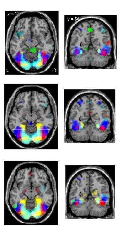 Aprender a leer y escribir deja huella en el cerebro