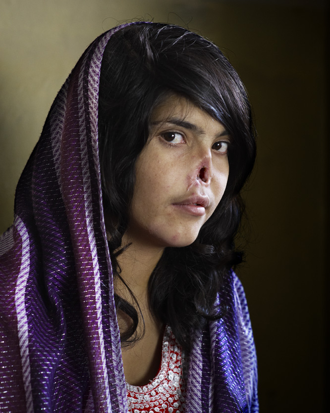 El retrato de Aisha, World Press Photo 2011