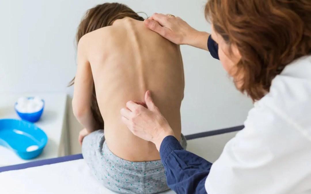 Risk Factors in the Progression of Scoliosis