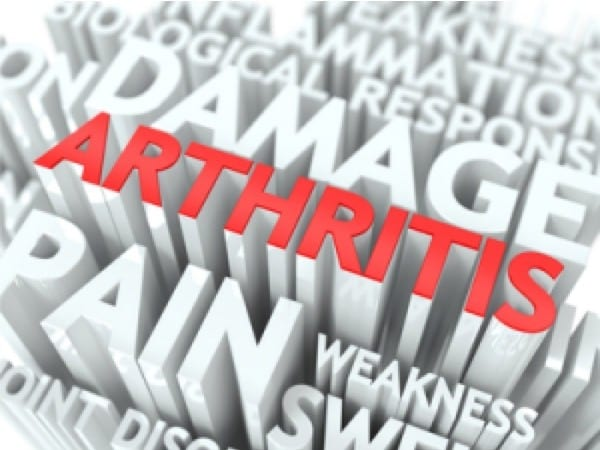 Soffri di artrite: la chiropratica può aiutarti