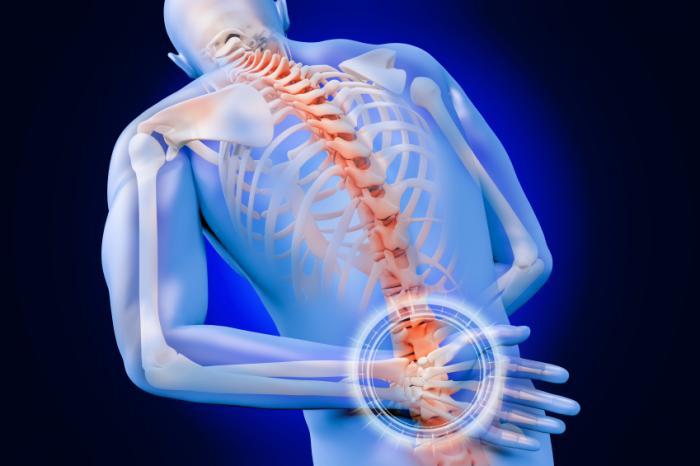 Tratamiento de dolor de migraña y disco de hernia lumbar en El Paso, TX